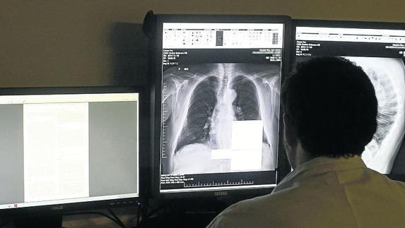 Se busca radiólogo para Segovia\' | El Norte de Castilla